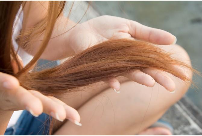 Saç Dökülmesi ve Saç Dökülmesine Karşı Alınması Gereken Önlemler
